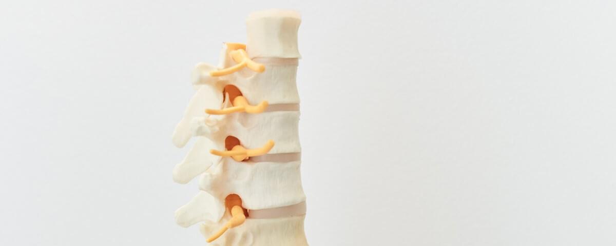 Darstellung Wirbelsäule | Multimodale Schmerztherapie in der Schmerzwerkstatt